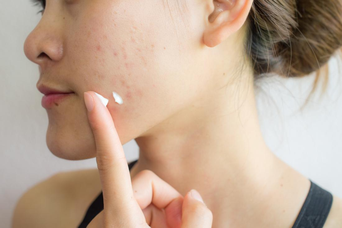 How to reduce scar marks