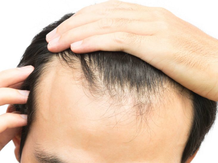 Which Hair Transplant is Safe and Why?